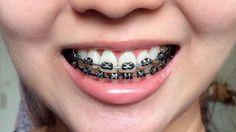 Résultat d& - baces colors - Braces Tips, Kids Braces, Dental Braces, Teeth Braces, Braces Retainer, Cute Braces Colors, Black Braces, Getting Braces, Simple Background Images