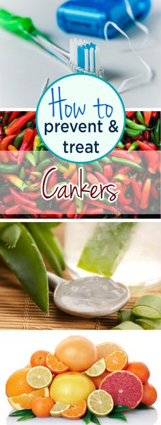 How to Prevent and Treat Cankers