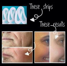 Rodan and Fields Redefine Acute Care Strips before & after!