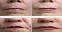 Τρίψτε το δέρμα σας με ΑΥΤΟ το μπαχαρικό και ΑΠΟΧΑΙΡΕΤΗΣΤΕ τις ρυτίδες