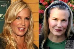 2. #Daryl Hannah - #These #Celebs Just #Wanted a Little #Plastic Surgery. the #Results? Horrifying! ... → Celebs