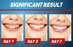 【Last Day Promotion】 - Intensive Stain Removal Whitening Toothpaste Teeth Cleaning, Cleaning Hacks, Instant White Teeth, Get Whiter Teeth, Stained Teeth, Natural Teeth Whitening, Teeth Care, Skin Care Tips, Health And Beauty