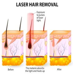 Laser Hair Removal Houston [[MORE]]Laser hair removal Houston is an astounding treatment that expels undesirable hair from various parts of your body. Laser hair removal Houston will make your skin. Ipl Laser Hair Removal, Laser Hair Removal Treatment, Best Hair Removal Products, Hair Growth Cycle, Unwanted Hair, Cosmetic Dentistry, Ingrown Hair, How To Remove, Alexandrite