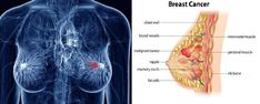 Μια μελέτη που πραγματοποιήθηκε στη Νορβηγία διαπίστωσε ότι οι άνθρωποι που πίνουν 3 φλιτζάνια γάλα την ημέρα, έχουν τρεις φορές περισσότερες πιθανότητες να αναπτύξουν καρκίνο του μαστού συγκριτικά με εκείνους που πίνουν μόνο μισό φλιτζάνι ή λιγότερο. Σίγουρα έχετε ήδη παρατηρήσει ότι ο καρκίνος του μαστού αυξάνεται συνεχώς, έτσι ώστε να φαίνεται ότι το γάλα …