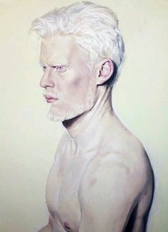 Stephen Thompson #albino #model