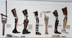 evolution of prostheses
