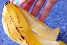 soigner hémorroïdes avec peau de banane