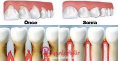 Bu doğal yöntem ile diş eti çekilmeleri duracak ve dişleriniz eski sağlığına kavuşacak