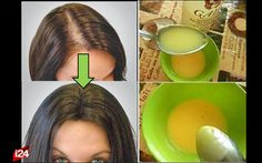 Súper bálsamo capilar: Gana el 30% de tu cabello cada dos semanas ¡Adiós caída!