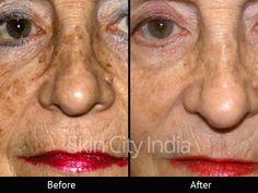 Skin City India - Anti Ageing Treatment