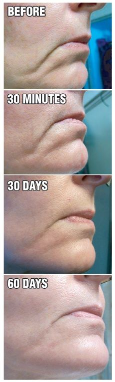 """""""Check out how this works in just 60 days!!"""" #BeautiControl Www.beautipage.com/kg4bcspa"""
