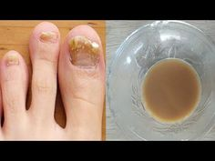Nail Polish, Nails, Health, Medicine, Diet, Varicose Veins, Finger Nails, Ongles, Health Care