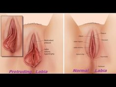 Women have the option with labiaplasty surgery to cosmetically enhance the outer vagina, or reduce discomfort through labia reduction for medical reasons. Hymen, Plastic Surgery Procedures, Body Contouring, Youtube, Workouts, Exercises, Natural Health, South Miami, Hoe Tips