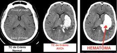 TC ( tomografia computadorizada )