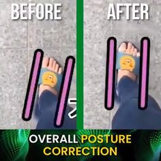 Our Silicone Hammer Toe Corrector will moves your toe back to the natural position. Also help keep your toes in place and prevent rubbing and pressure. Hammer Toe Correction, Posture Correction, Muscle Imbalance, Knitting Videos, Silicone Gel, Feet Care, Fitness Tips, Medical, Positivity
