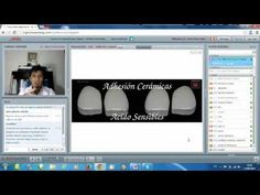 Saber Cómo En Cementación Adhesiva con Dr. Alberth Correa.