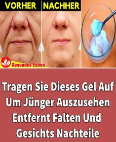 Apply this gel to look younger Skins Minecraft, Bridal Nail Art, Sleep Remedies, Les Rides, How To Apply, How To Remove, Health Logo, Wrinkle Remover, Look Younger