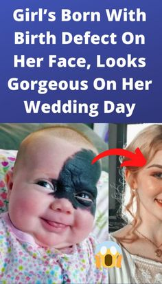 Girl's Born With Birth Defect On Her Face, Looks Gorgeous On Her Wedding Day Funny Images, Funny Photos, Relationship Comics, Thing 1, Living A Healthy Life, Can't Stop Laughing, Funny Facts, Funny Humor, Classic Collection