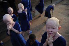 Persecución Caza Albinos Tanzania (4)
