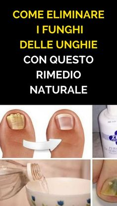 This simple mixture quickly eliminates the fungi of the .- Questa semplice miscela elimina rapidamente i funghi delle unghie dei piedi e delle mani! How to Eliminate Nail Fungi With This Natural Remedy - Health And Beauty, Health And Wellness, Diy Beauty, Beauty Hacks, Vicks Vaporub, Cnd Shellac, Nail Fungus, Rose Buds, Tea Tree