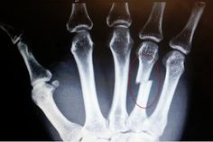 Boxer S Fracture Closed Reduction Orthopedic Surgery