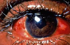 Pars Plana - is a narrow section of the ciliary body, inflammation of which is known as pars planitis. In association with the inflammation or immunological response, fluid and cells infiltrate the clear gelatin-like substance (vitreous humor) of the eyeball, near the retina and/or pars plana. As a result, swelling of the eye or eyes can also occur, but more importantly blurred vision and progressive increase in the vision of floaters is reported as...