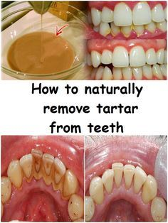 Be your own dentist easy tricks for plaque removal at home tartar is an organo mineral deposit met in permanent teeth temporary fixed and mobile restorations implants and orthodontic appliances solutioingenieria Gallery