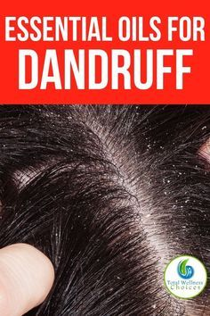 You have silky long hair, but you are ashamed of dandruff? Avoiding to wear a black dress? And it also causes itching? It's time to say goodbye to them, you can get a dandruff free hair with the help of natural home remedies for dandruff. Itchy Scalp Causes, What Causes Dandruff, Oils For Dandruff, Home Remedies For Dandruff, Getting Rid Of Dandruff, Hair Dandruff, Essential Oils For Hair, Organic Essential Oils, Diy Hair Spray