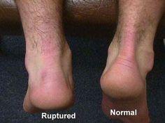 ankle exercise tendenitis   Achilles Tendon -Information, Injury , Rupture , Treatment , Exercises