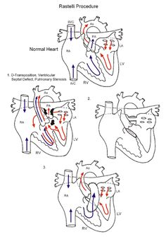 Brachiocephalic trunk originates at aortic arch. Feeds