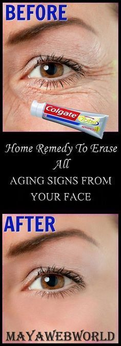 Who doesn't want youthful and younger looking skin? We know we all do. Aging is a natural process that catches hold of each one of us eventually, but we ourselves make things worse and speed up the…