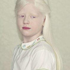 crianças albinas bonitas - Pesquisa Google