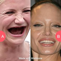 What's worse, no teeth or no eyebrows? Click here to vote @ http://getwishboneapp.com/share/533009