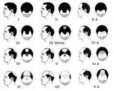 What are the best Male Patter Baldness Treatments in 2016? Here are Natural and Scientific ways to cure Male Pattern Baldness or Androgenic Alopecia