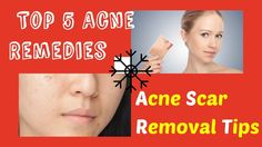 Acne Scar Removal Home Remedies That Work Fast   Top 5 Remedies