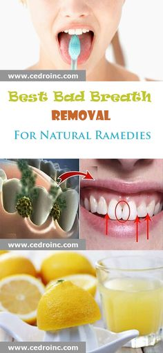Best Bad Breath Removal For Natural Remedies