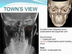 Maxilla anatomy, development & surgical anatomy Palatine Bone, Paranasal Sinuses, Maxillary Sinus, Nasal Septum, Cleft Lip, Trauma, Anatomy, Radiology, Artistic Anatomy