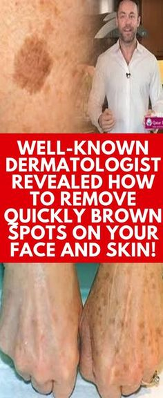 Well-known Dermatologist Revealed How To Remove Quickly Brown Spots On Your Face And Skin! Well-known Dermatologist Revealed How To Remove Quickly Brown Spots On Your Face And Skin! How To Get Rid, How To Remove, Brown Spots On Skin, Age Spots On Face, Facial Brown Spots, Black Spots On Face, Dark Spots On Legs, How To Cure Anxiety, Thing 1