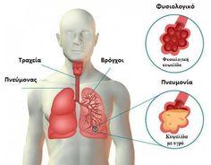 Πάθατε ποτέ πνευμονία; Αν ναι, ξέρετε πόσο σοβαρό μπορεί να είναι κάτι τέτοιο. Επιπλέον, πιθανώς γνωρίζετε πόσο σημαντικό είναι να έχετε υπόψη σας τα συμπτώματα που συνοδεύουν τη συγκεκριμένη ασθένεια. Πρέπει να προσέχουμε ακόμα περισσότερο όταν πρόκειται για παιδιά και ηλικιωμένους, που μπορεί να υποφέρουν από σοβαρές συνέπειες αν πάθουν πνευμονία. Όπως έχουμε ξαναπεί, ο …