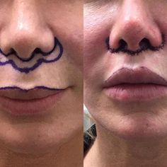 Checkout this video of Dr Spiegel performing a lip lift in the office (link in bio) ⚠️ warning: this video is graphic. For more videos like this follow us on snapchat: @spiegelcenter #liplift #pout #lips #drspiegel #kyliejennerlips #snapchat #youth #juvederm #wrinklefree #biglips #10yearsyounger #aesthetic #cosmetic #filler #botox #surgery
