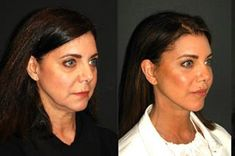 Deep Plane Facelift New York | Best Deep Plane Facelift Lower Face Lift, Mini Face Lift, Eyelid Lift, Brow Lift, Sagging Cheeks, Sagging Skin, Facelift Before And After, Natural Face Lift, Neck Lift