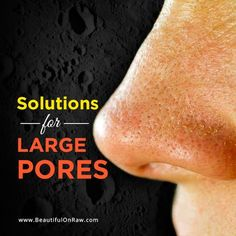 Solutions for Large Pores   Beautiful on Raw