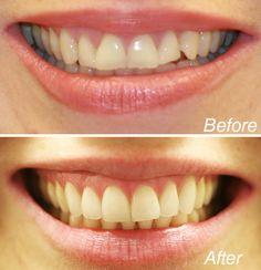 Dentist Nyc, Celebrity Dentist, Dental Services, Cosmetic Dentistry, White Teeth, Dental Health, Teeth Whitening, Cosmetics, Celebrities