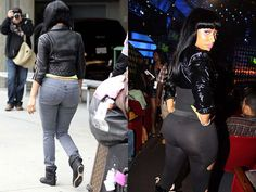 Nicki Minaj Buttock Implants Before and After Photos - Celebrity Plastic Surgery Celebrity Bra Sizes, Chin Implant, Plastic Surgery Photos, Environmental Influences, Celebrity Plastic Surgery, Celebs, Celebrities, Nicki Minaj, Body Measurements