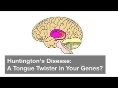 Huntington's Disease is a rare genetic disorder that causes brain damage over time. Currently, there is no cure. However, scientists are working hard to find. Rare Genetic Disorders, Huntington Disease, Tongue Twisters, Working Hard, Genetics, Scientists, Brain, The Cure, Videos