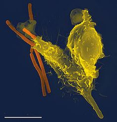 A scanning electron microscope image of a single neutrophil (yellow), engulfing anthrax bacteria (orange).