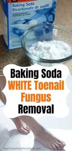 White Toenail Fungus Baking Soda Foot Soaks: Consider to hide with nail polish? Discover how to get rid of White Superficial Onychomycosis with baking. White Toenail Fungus, Toenail Fungus Home Remedies, Toenail Fungus Treatment, Fungus Toenails, Nail Fungus Removal, Toe Fungus, Baking Soda Beauty Uses, Baking Soda Uses, Fungi