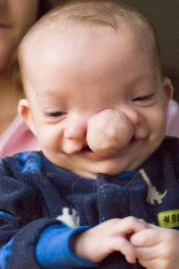 Baby Born With Large Facial Cleft Proves Life is Beautiful http://www.lifenews.com/2013/10/20/baby-born-with-large-facial-cleft-proves-life-is-beautiful/