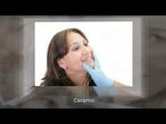 Dentist In Cairns: What You Need To Know About Dental Braces Visit us on brucestevensdenta.
