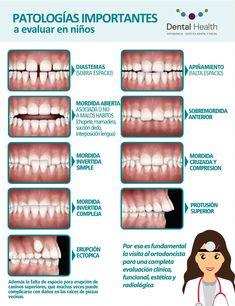 Anomalías Dentomaxilares niños, por Dental Health – Top Of The World Dental World, Dental Life, Dental Art, Dental Health, Dental Assistant Study, Dental Hygiene Student, Dental Hygienist Education, Dental Anatomy, Dental Technician